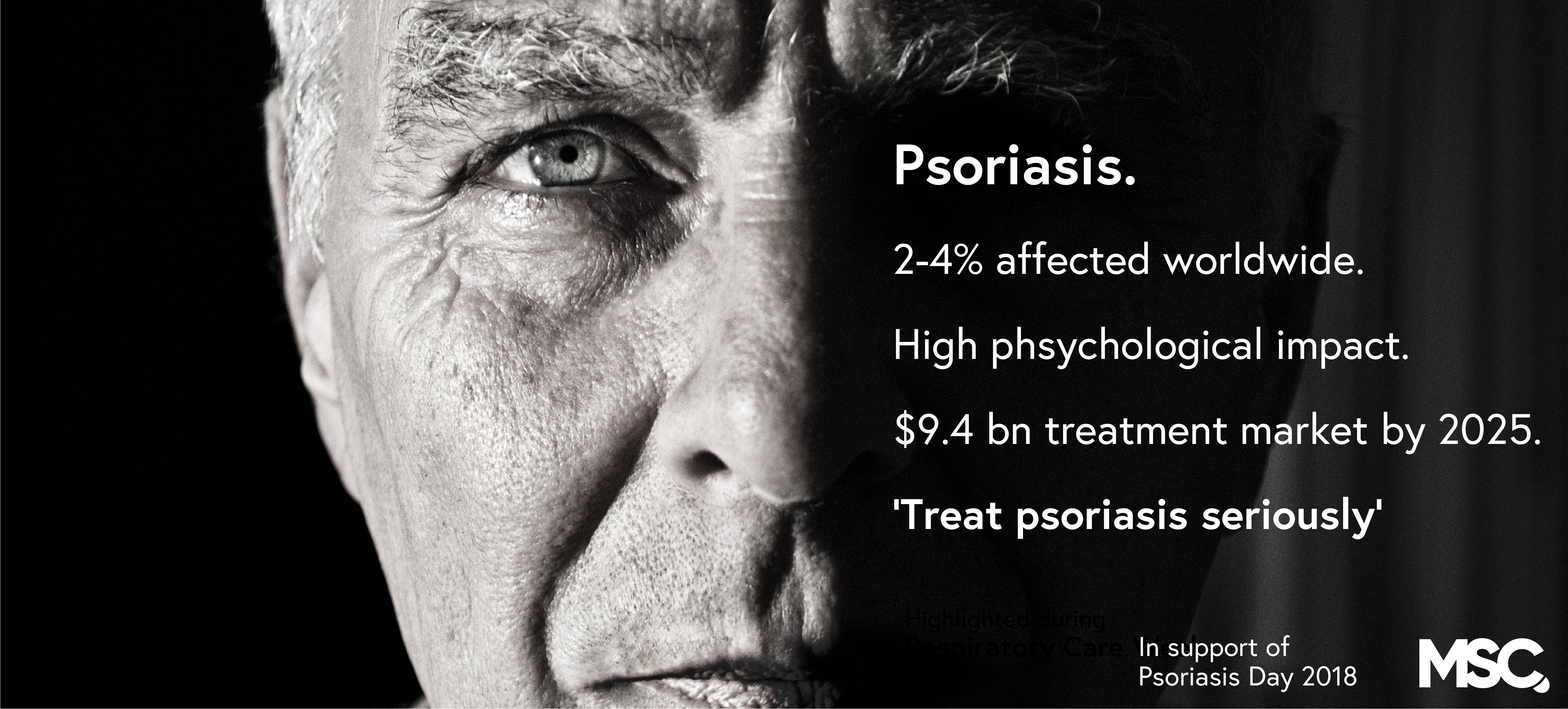 World Psoriasis Day: It's time to treat psoriasis seriously